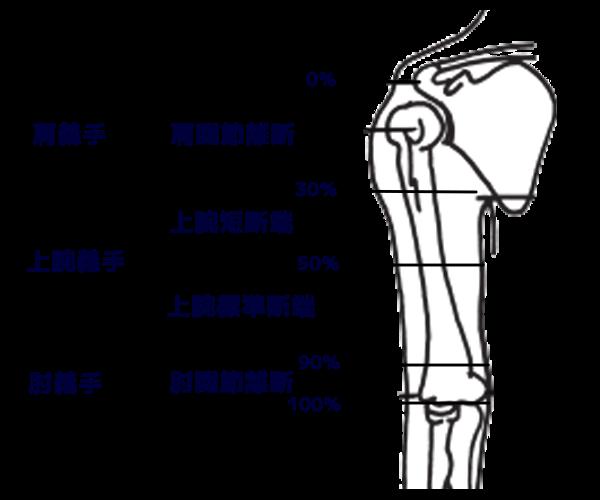 切断部位と義手