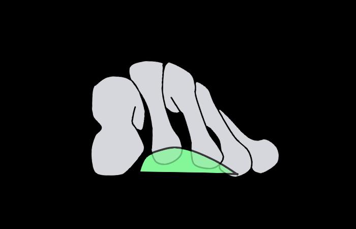 メタタルサルパッド(前額)