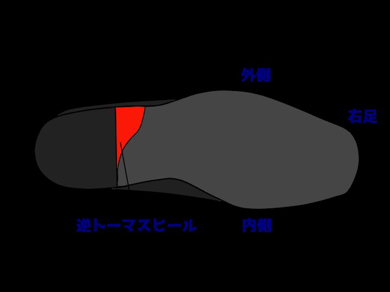 靴の踵部補正 逆トーマスヒール