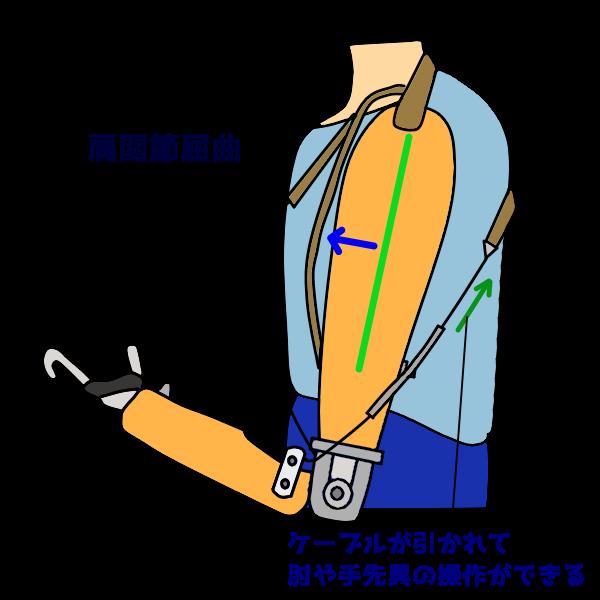 能動義手の操作 肩屈曲による肘継手屈曲と手先具開閉