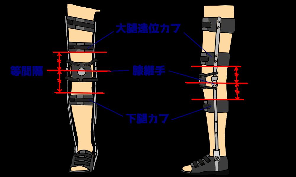 KAFO-大腿遠位カフの位置設定