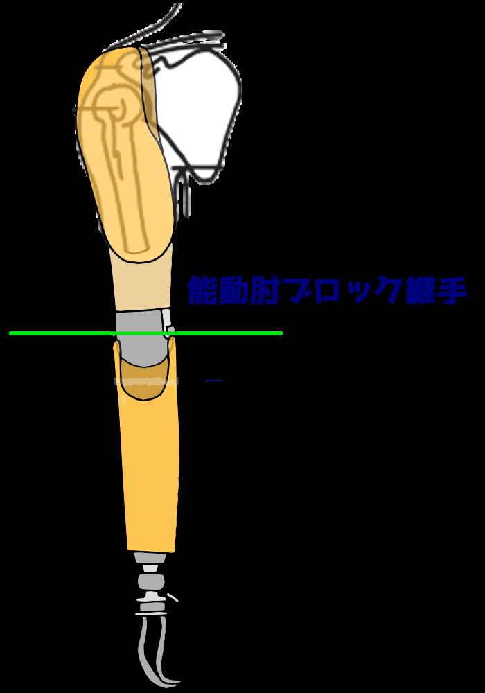 上腕義手と能動肘ブロック継手