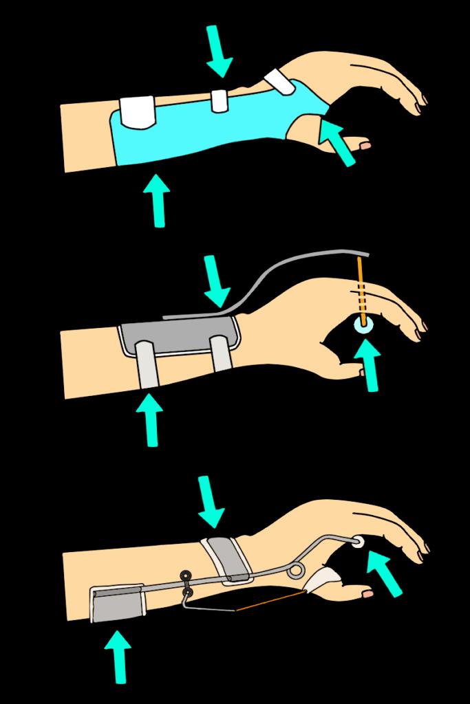 橈骨神経麻痺用装具の3点固定