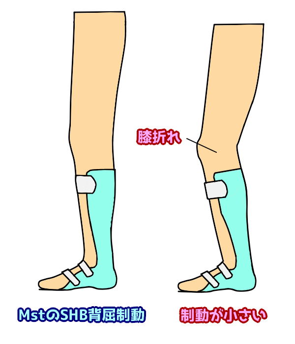 SHBの役割 膝折れを防ぐ