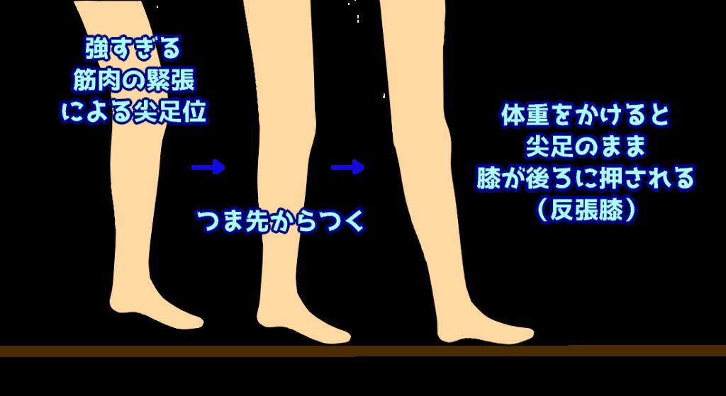 尖足での歩行