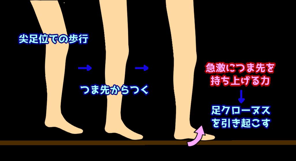 尖足での歩行2