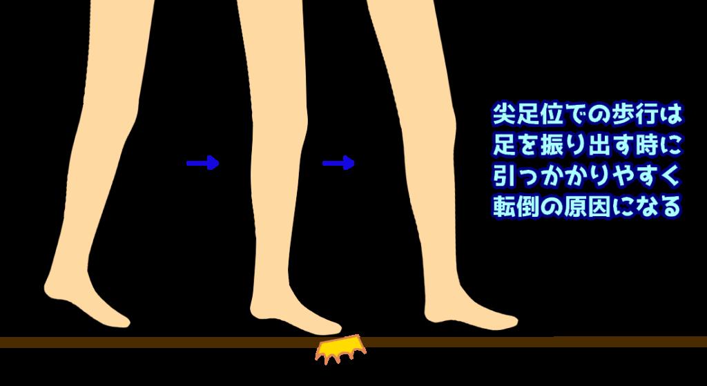 尖足での歩行3