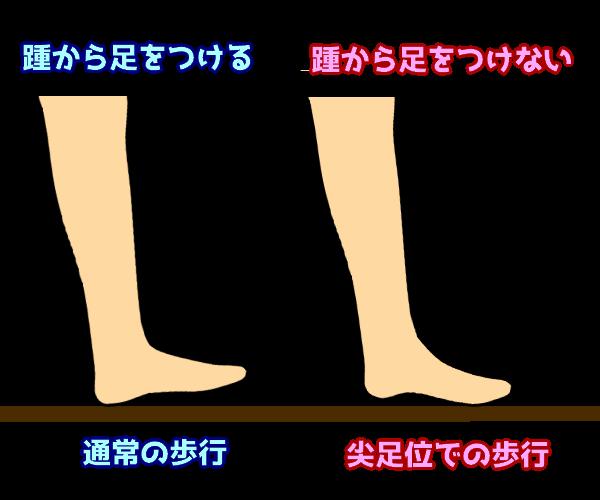 尖足位での接地