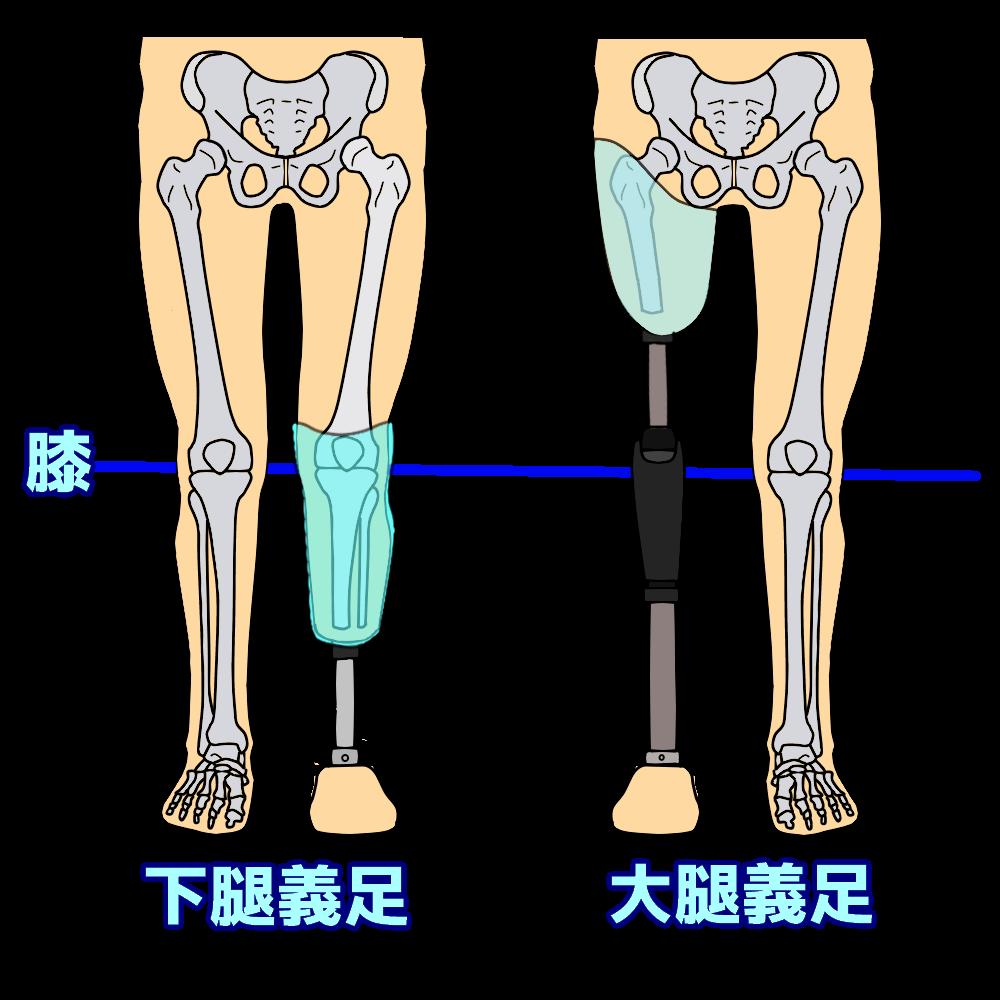 膝の機能があるか?