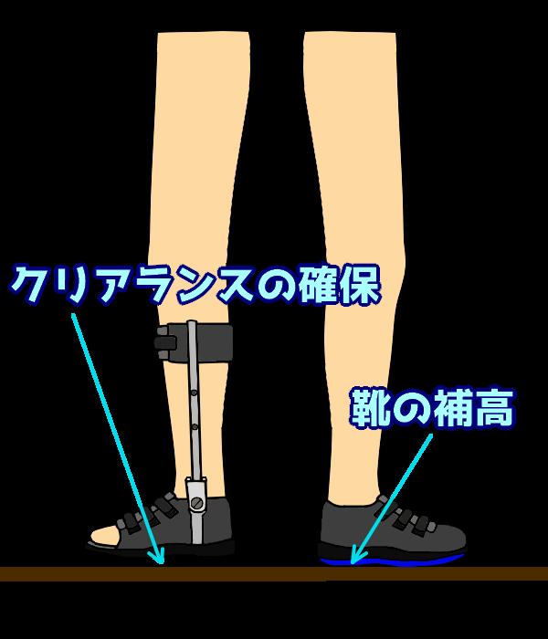 反対側の靴補高によるクリアランス確保