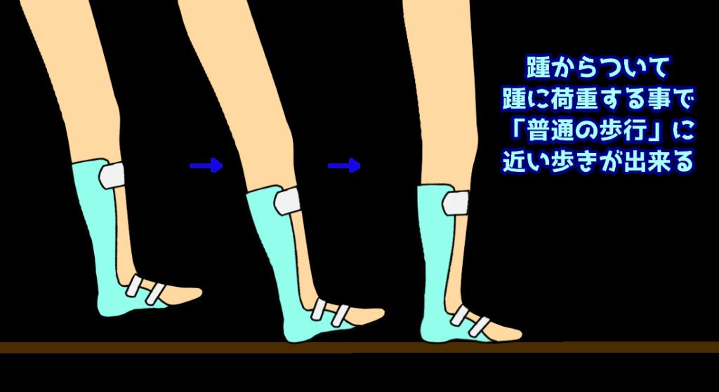 装具装着時の歩行1