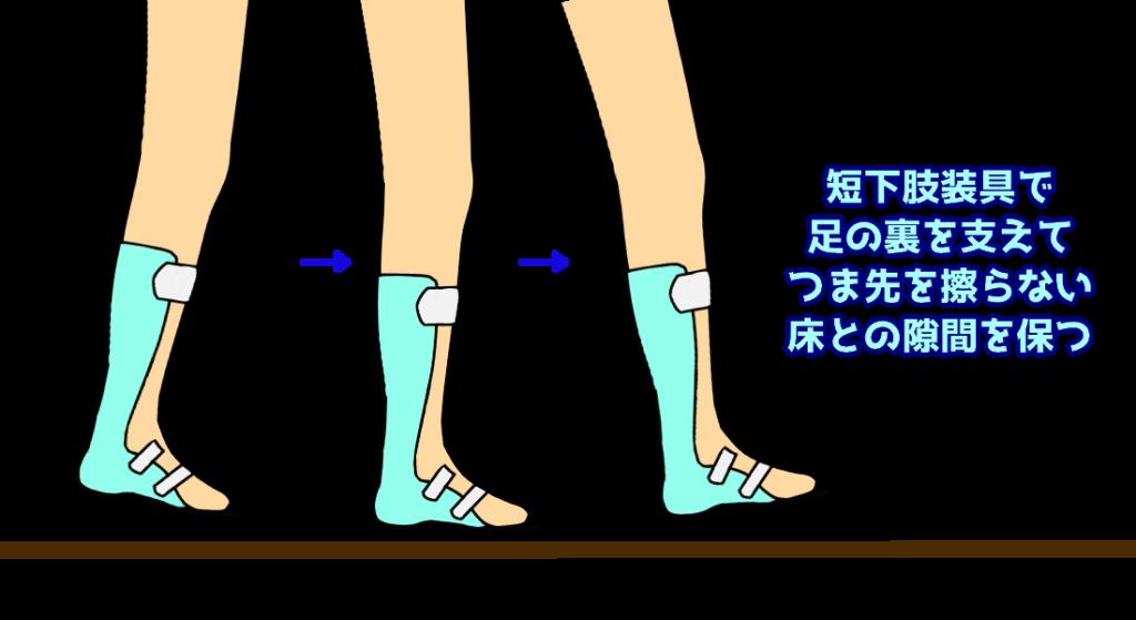 装具装着時の歩行3