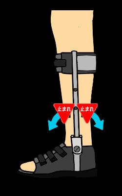 固定で使用する両側支柱付短下肢装具