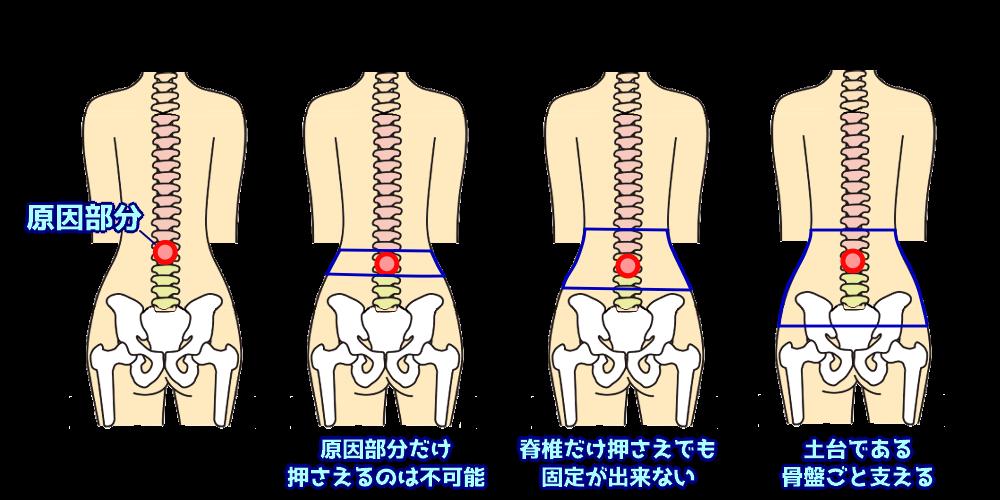 脊椎の動きを制限するために