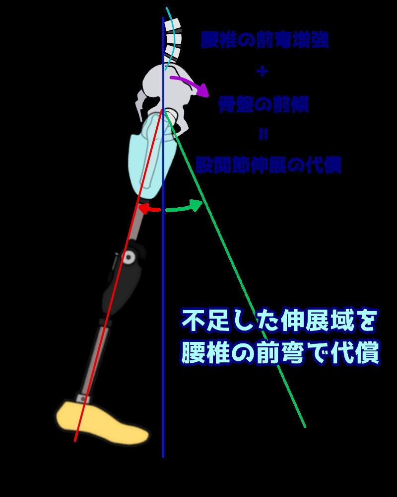 股関節伸展域の減少