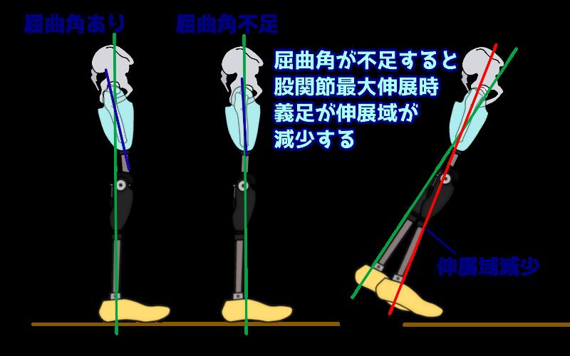 大腿義足ソケット 初期屈曲角の不足