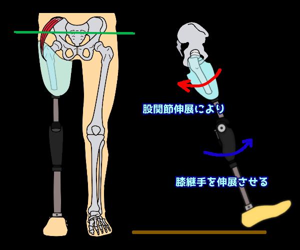 断端側の筋力不足