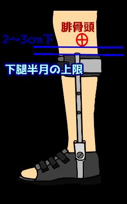 下腿半月の位置設定