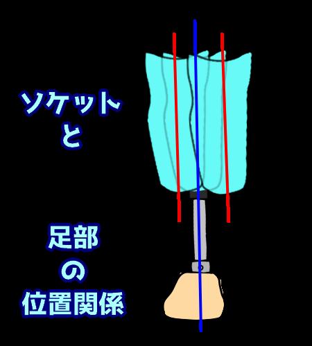 ソケットと足部の位置関係