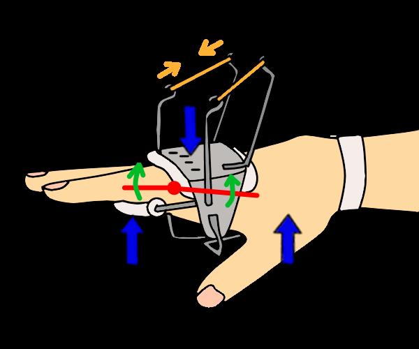 MP関節の3点固定と伸展補助2