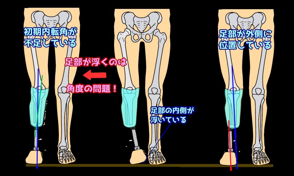 足部のどこかが浮くのは,ソケット角度の問題