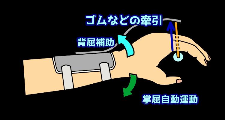 トーマス型牽引装具の仕組み