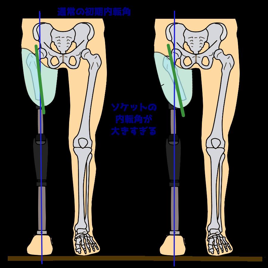 大きすぎる大腿義足ソケットの内転角