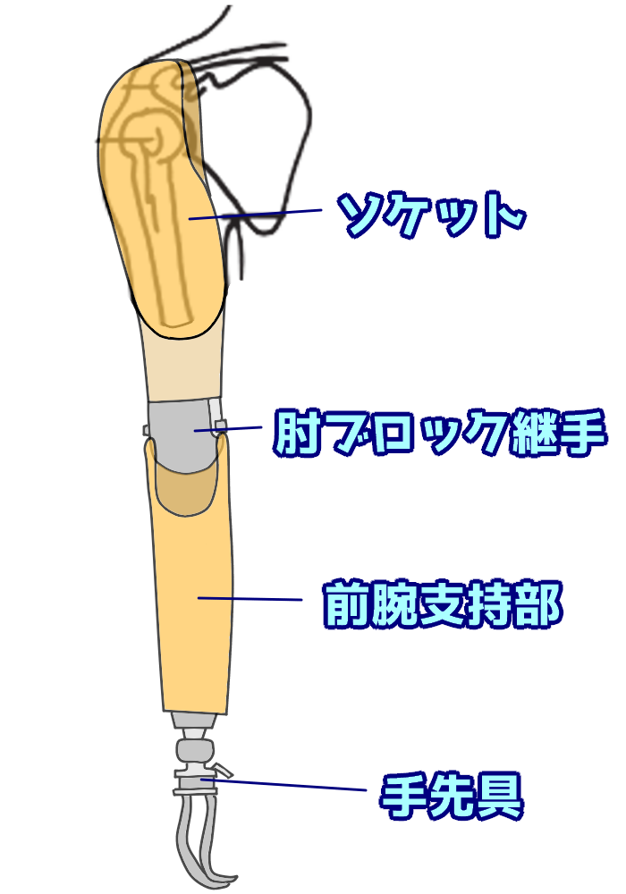 上腕義手の構成要素