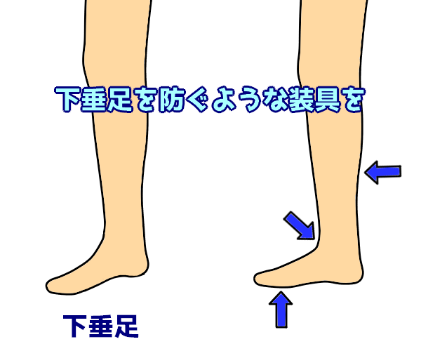 下垂足を防ぐような装具を
