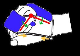 MP関節の3点固定と屈曲補助