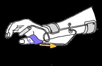 母指の伸展・外転補助