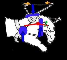 MP関節の3点固定と伸展補助