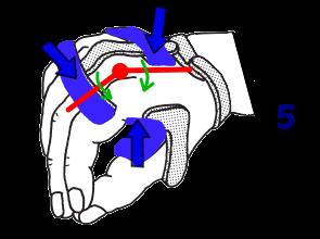 MP関節関節の3点固定