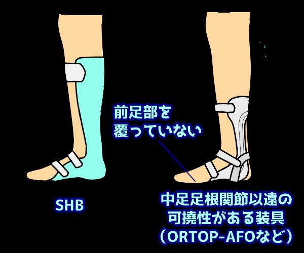 中足足根関節以遠の 可撓性がある装具