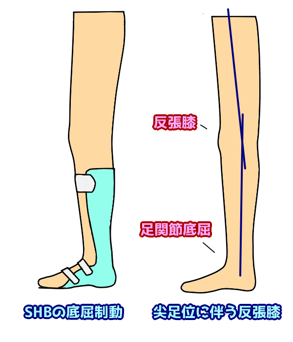 尖足位に伴う反張膝
