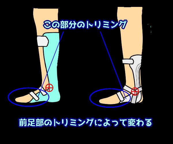 前足部のトリミングによって変わる