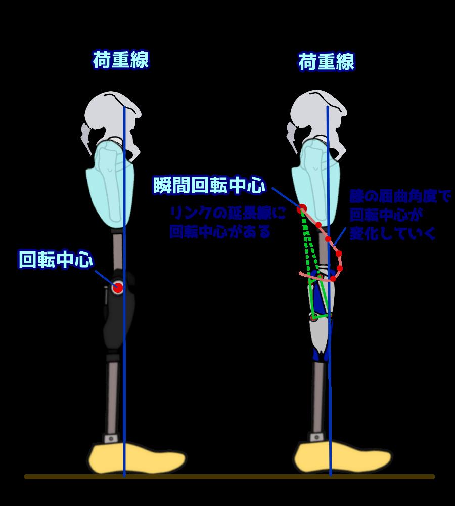 膝軸の回転中心の違い