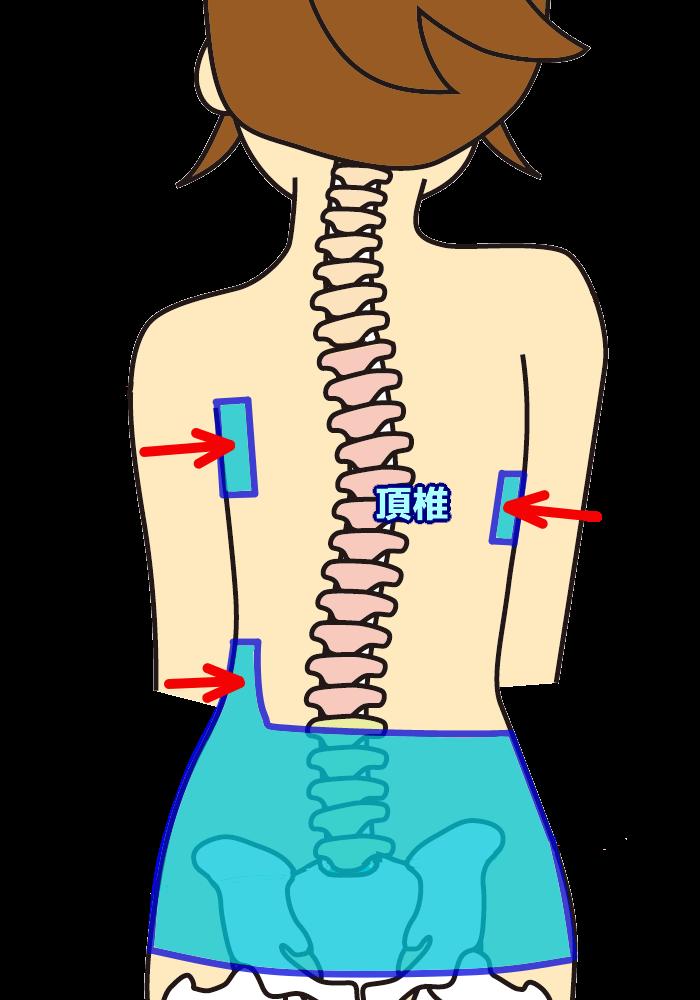 側弯症装具の仕組み