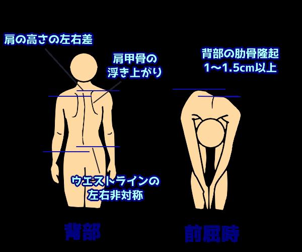 側弯症の特徴